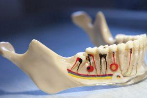 endodonti2